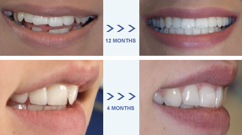 Adult-Orthodontics-Limefield-Dental