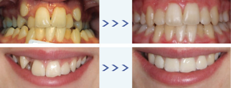 NHS-Orthodontics-Limefield-Dental